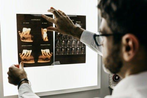 牙痛了怎麼辦?一文看清楚牙科服務收費