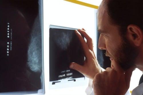 簽證前必須:肺結核病測試